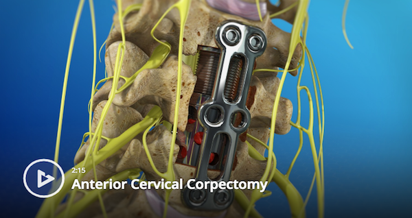 Anterior Cervical Corpectomy