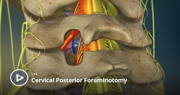 Cervical Posterior Foraminotomy