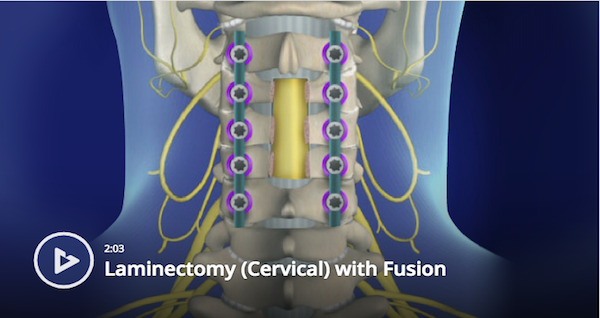 Cervical Laminectomy with Fusion