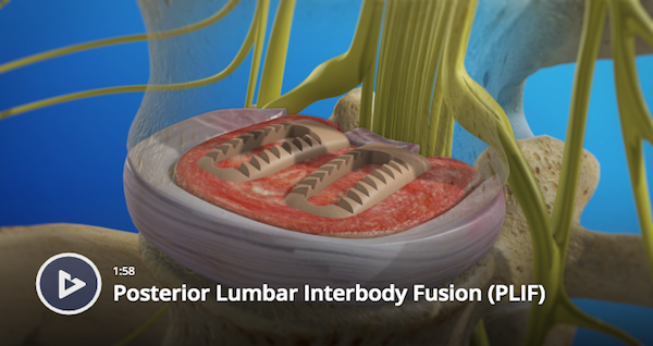 Posterior Lumbar Interbody Fusion
