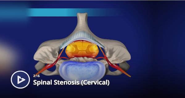 Cervical Spinal Stenosis