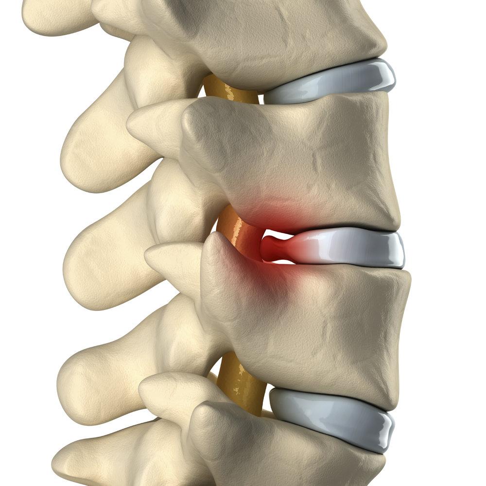 herniated-disk.jpg