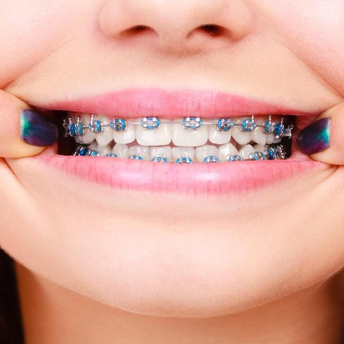 <p><strong>Specialist Orthodontics</p></strong>