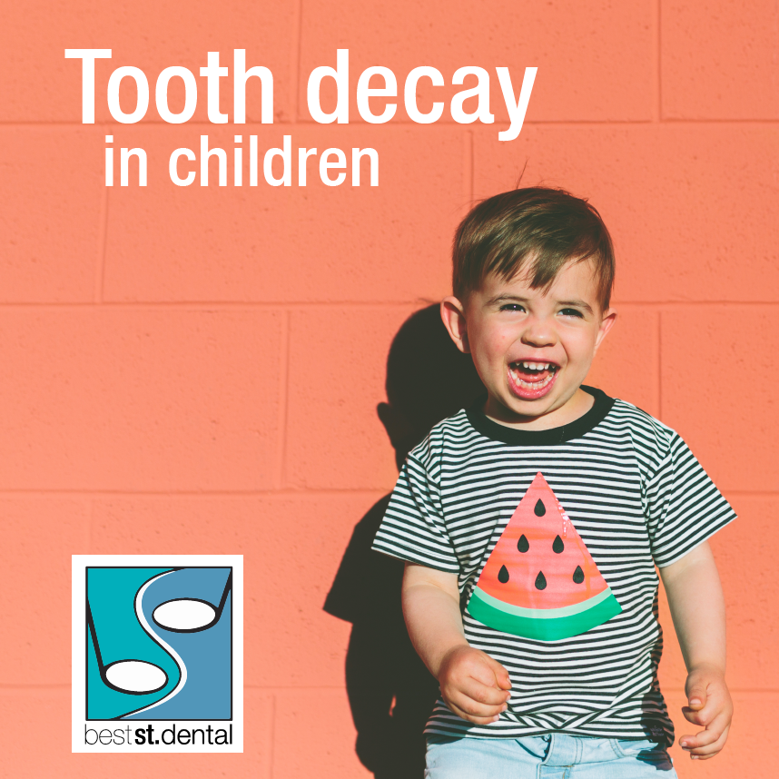 Tooth decay-01.png