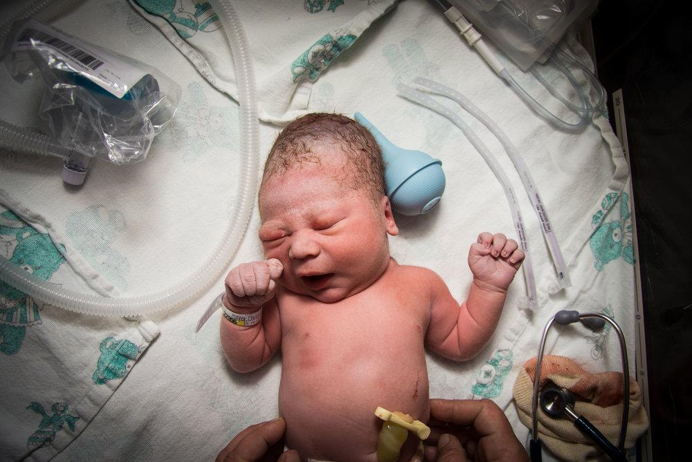 45% in Birth & Newborn