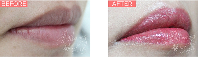 BeforeAfter_Lip.jpg