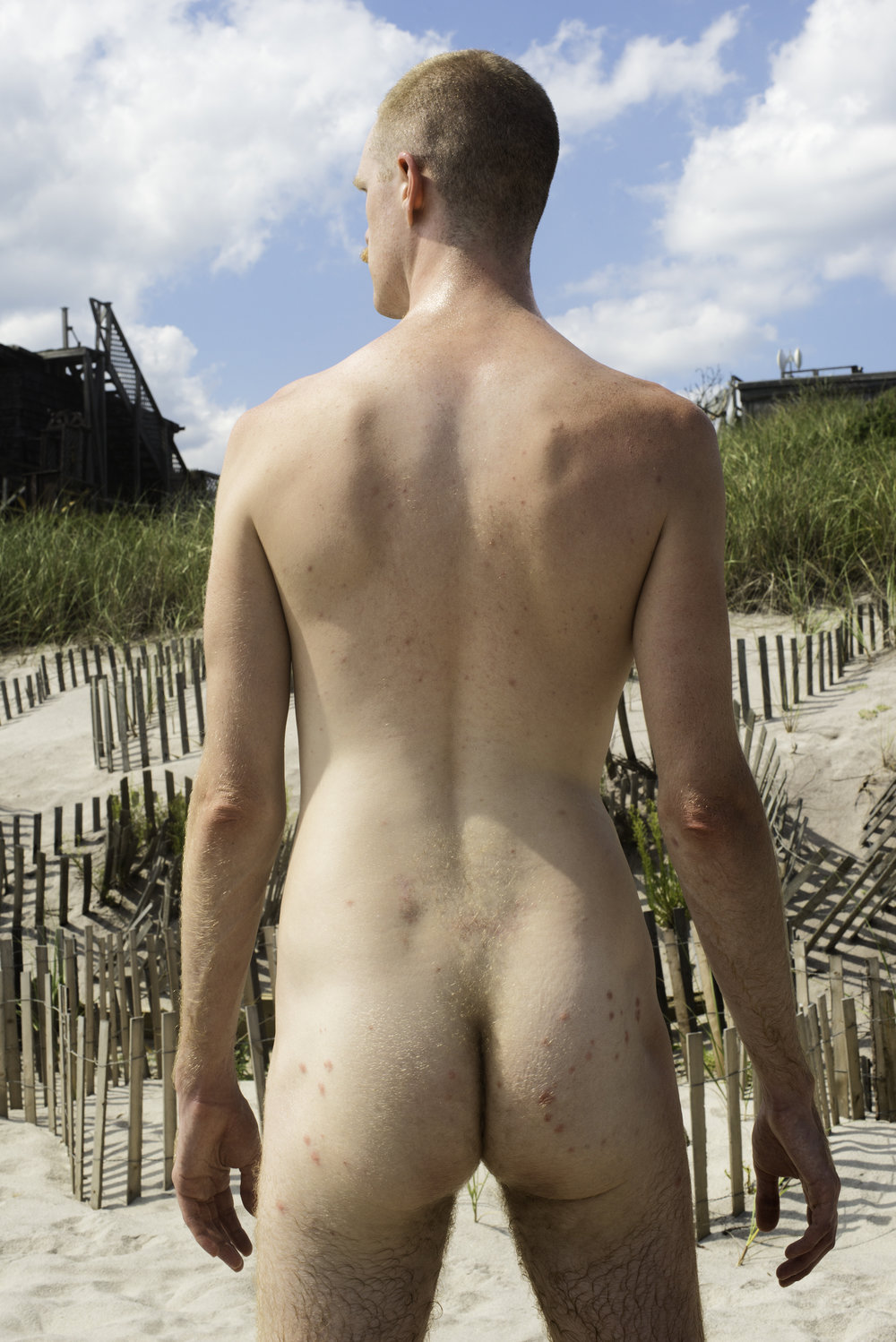 Peter with Mosquito Bites (Fire Island),  2017