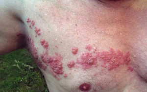 Herpes_zoster_chest-300x188.jpg