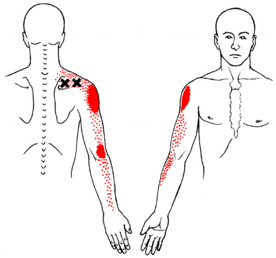 The XX shows the tight muscle and the red referral pattern is shown down the arm.