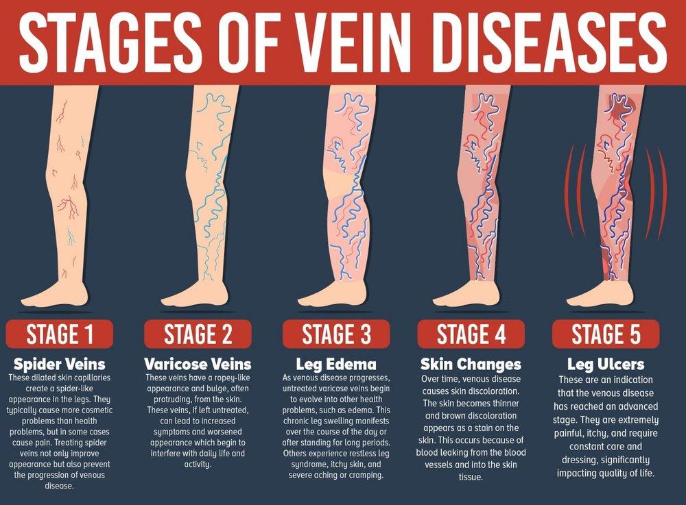 vein-disease-infograpghic.jpg