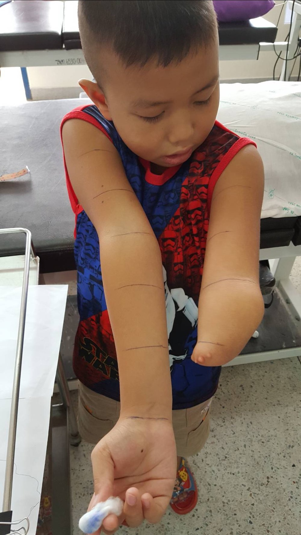 Tui is being measured for a 3D printed Unlimbited Arm