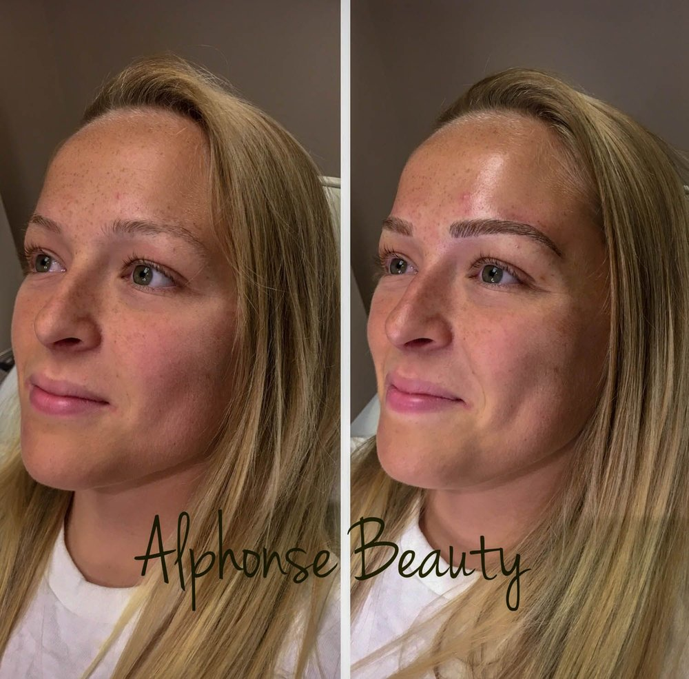Full face before and after from eyebrow microblading at Alphonse Beauty