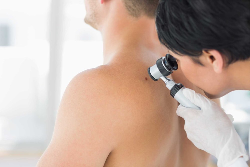 Doctor examining mole on back of mansweat2much_blog images.jpg