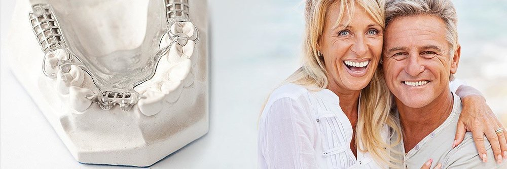All-on-4-dental-implants-2.jpeg