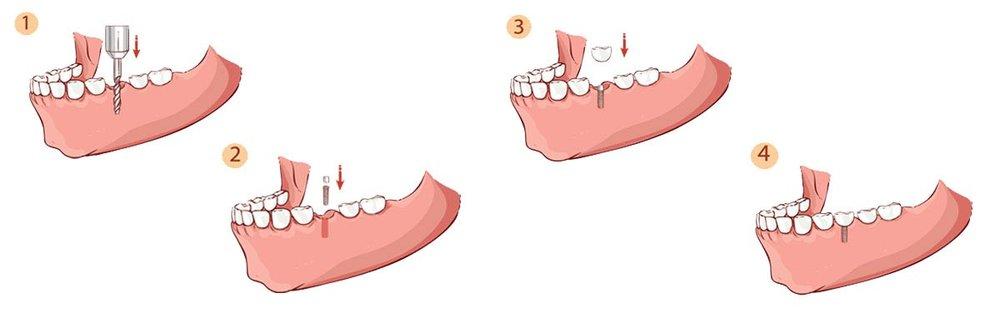 The+Dental+Implant+Procedure_Header.jpg