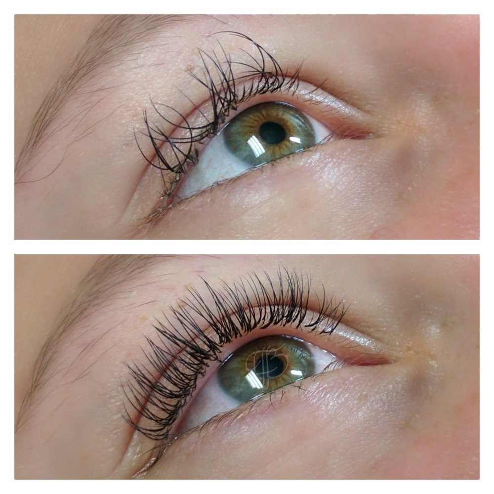 before:  Lash extensions by another artist. Twisting is caused by lack of support at the base of the natural lash as extensions grow out   after:  Partial Removal + Classic Max Fill by The Studio