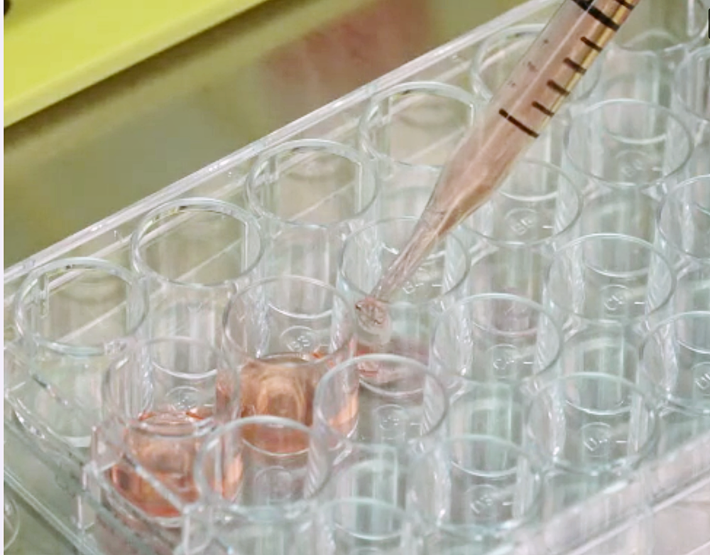 Our Method - Our unique PSC culturing technique has been highlighted in a recent JoVE journal video.