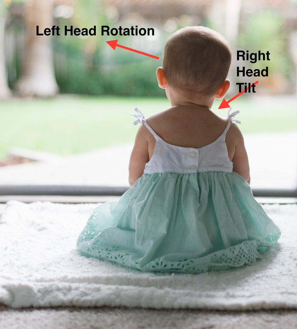 Right-side Torticollis - Right ear tilts close to the right shoulder, and the head turns to the left.  Note: There are 2 movements in the neck that are caused by the tightening of 1 muscle.