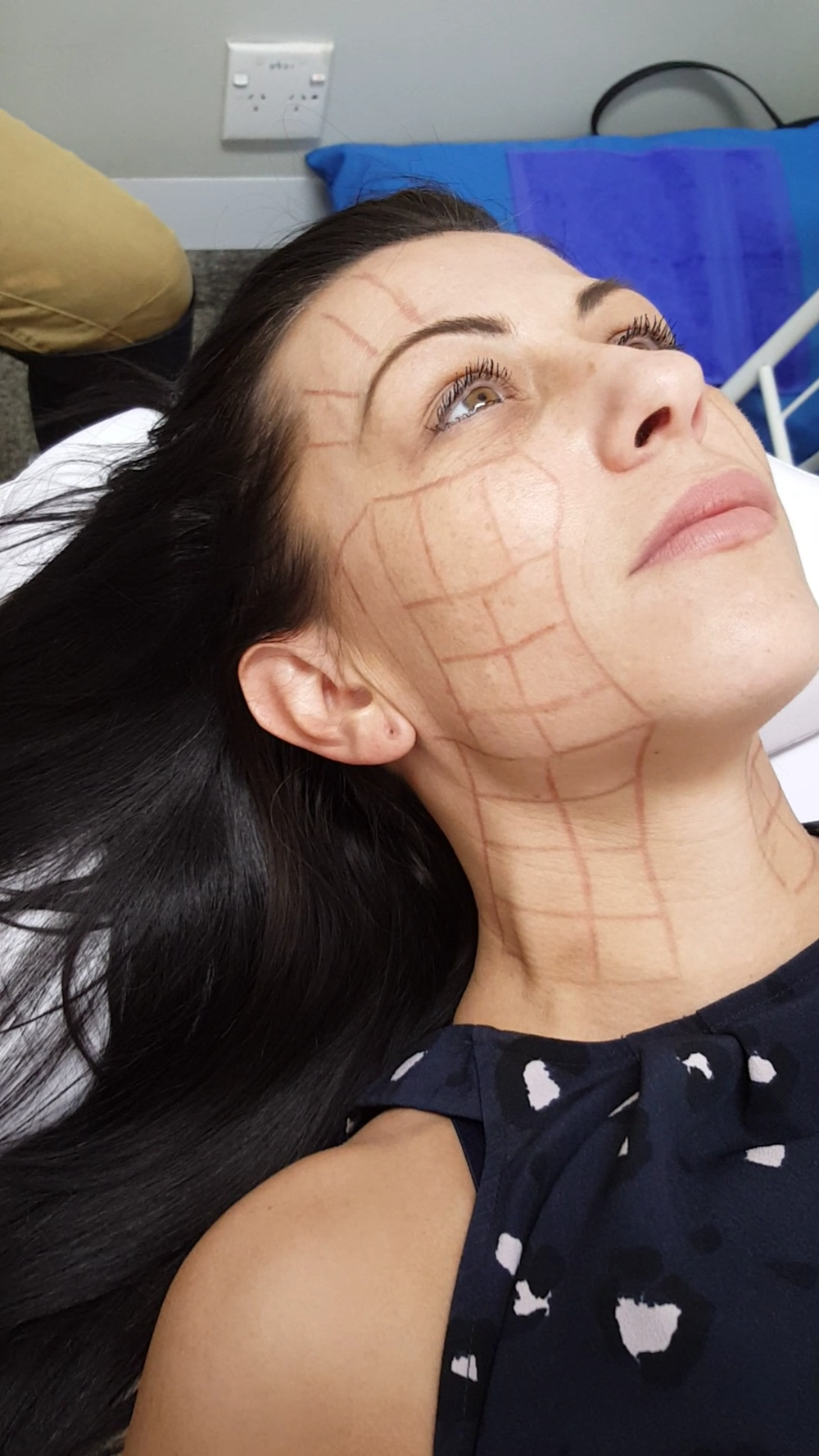 3D Clinic - HIFU Non-surgical facelift