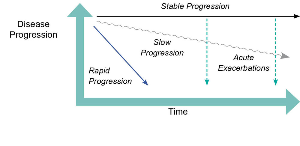 Figure 11: How IPF progresses over time (adapted from: ²¹)