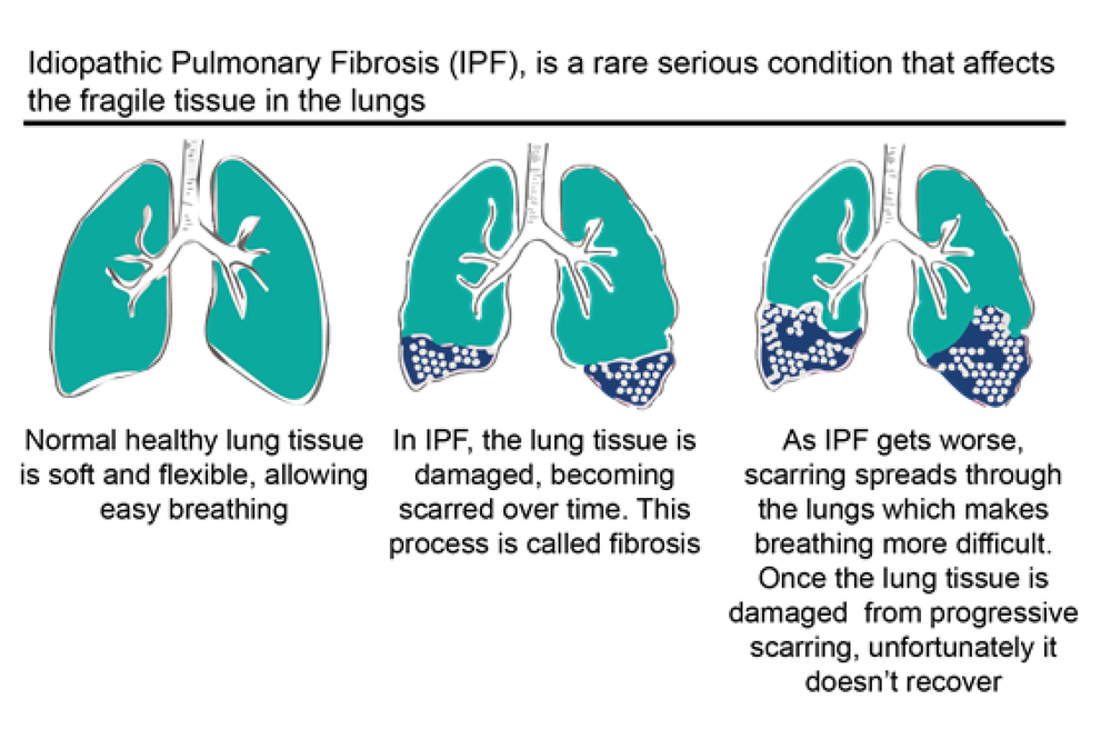 Figure 4: How Idiopathic Pulmonary Fibrosis affects the lungs tissue (adapted from: ¹¹)