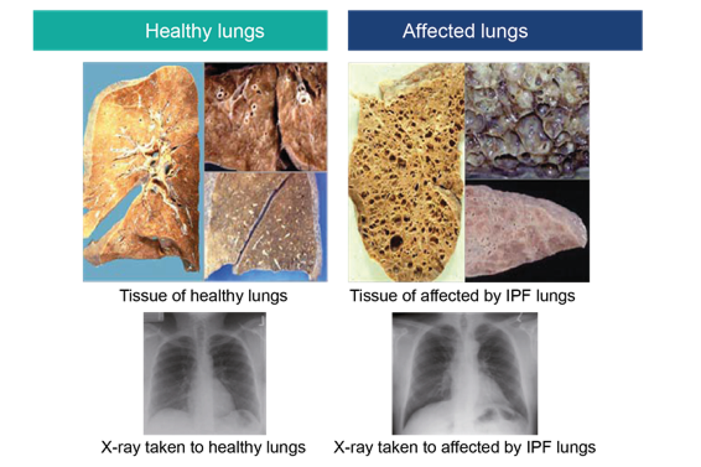 Figure 5: Difference between the tissue of healthy lungs and affected by IPF lungs; and examples of X-rays taken of healthy lungs and affected by IPF lungs (adapted from: ¹² ¹³)