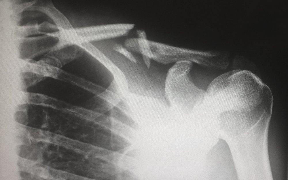 broken bone.jpg