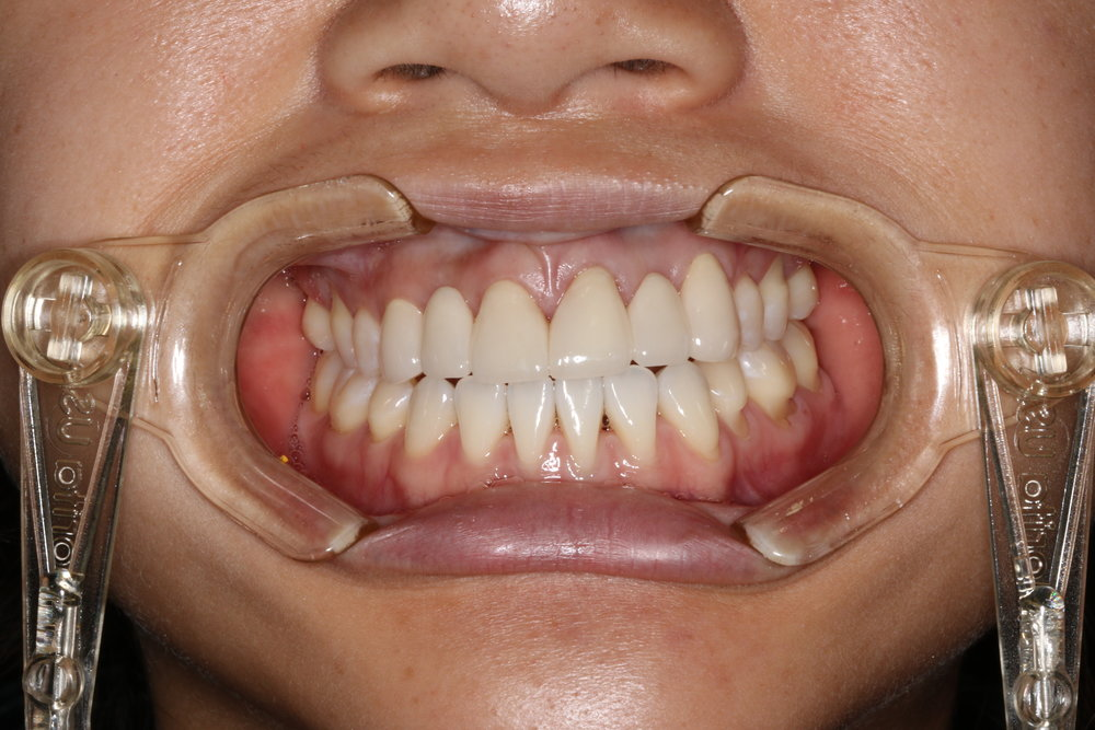 Bridges were constructed to successfully restore out patient's smile.