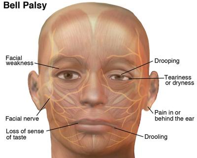 Lyme Disease Symptom - Bells Palsy - Lyme Advise