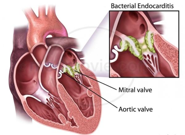 Lyme Disease Symptom - Endocarditis - Heart symptoms - Lyme Advise