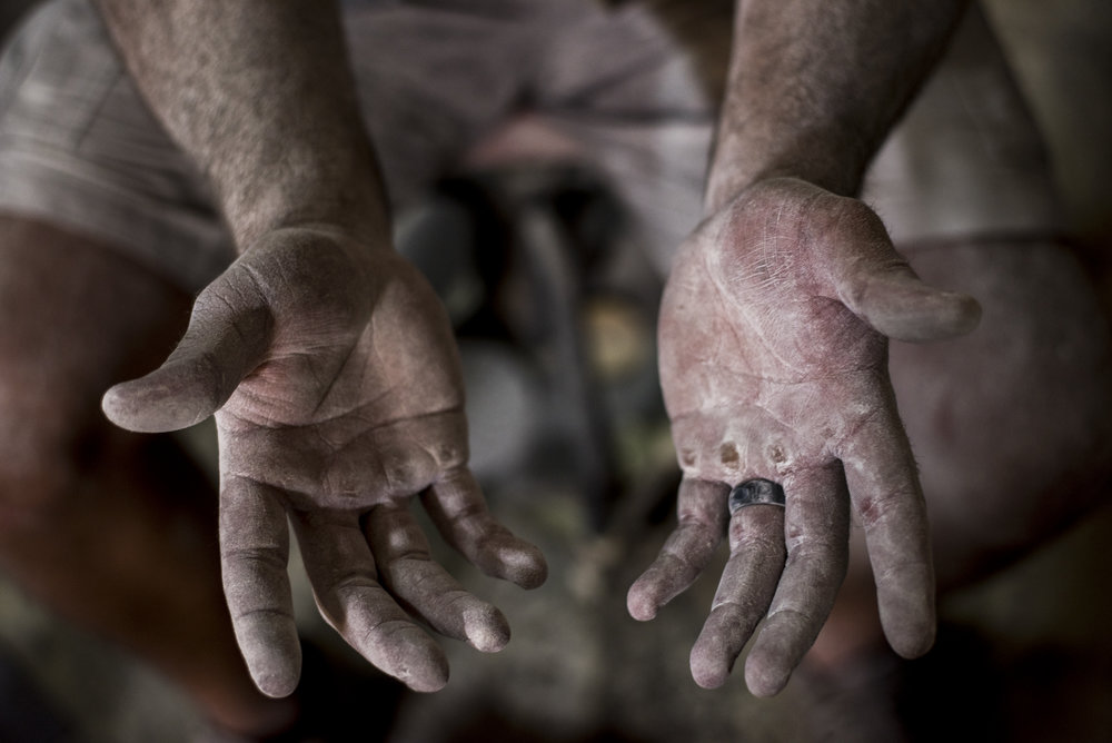 Tim Dailey holds out his hands after working on a car in his dad's auto body shop in Cynthiana, Kentucky.