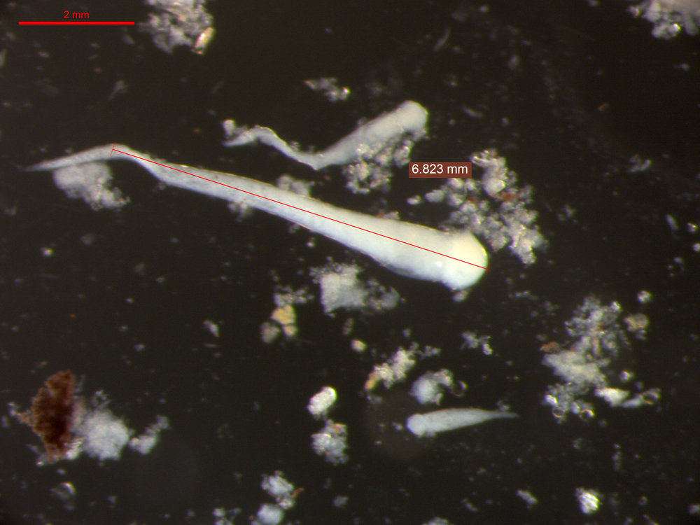 possible sperm in male0028 - Copy.jpg