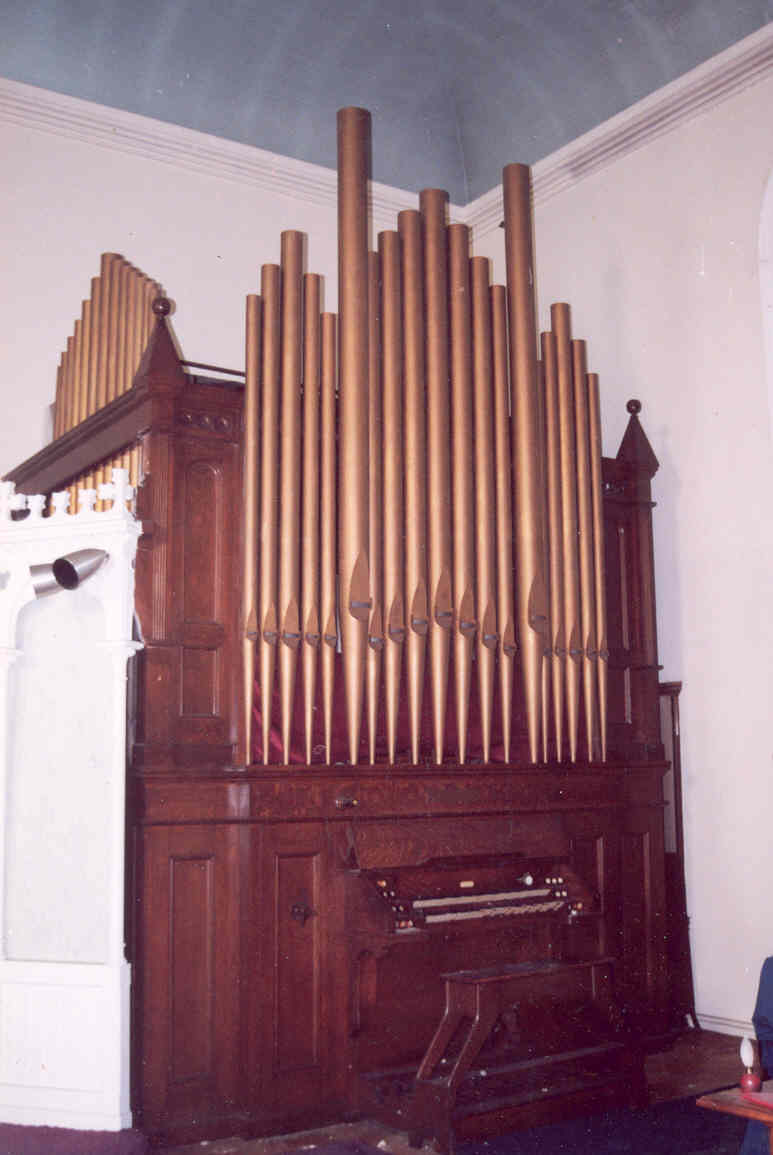 Organs For Sale Organ Clearing House