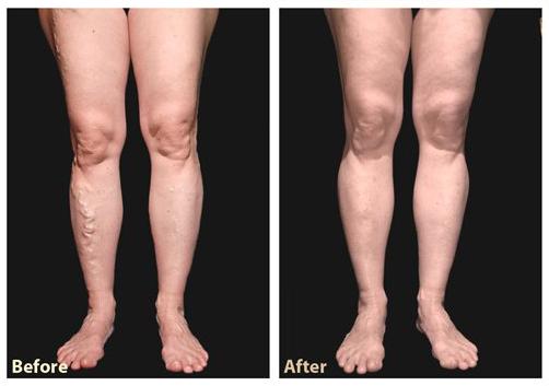 dr Jarminski varicose vein treatment.jpg