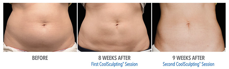 CoolSculpting_Before_After_Abs.png