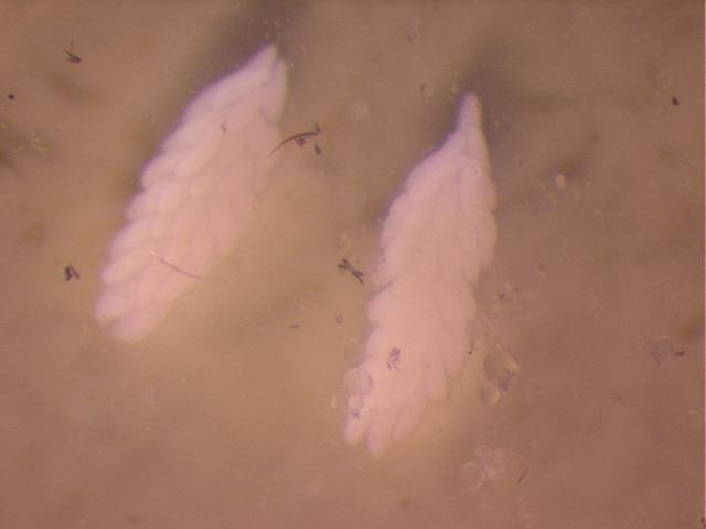 Aedes albopictus  ovaries