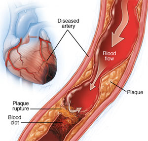 How plaque decreases blood flow in a vessel