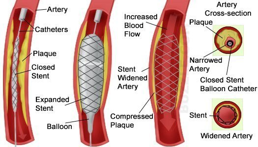 How a stent helps increase blood flow in arteries with plaque