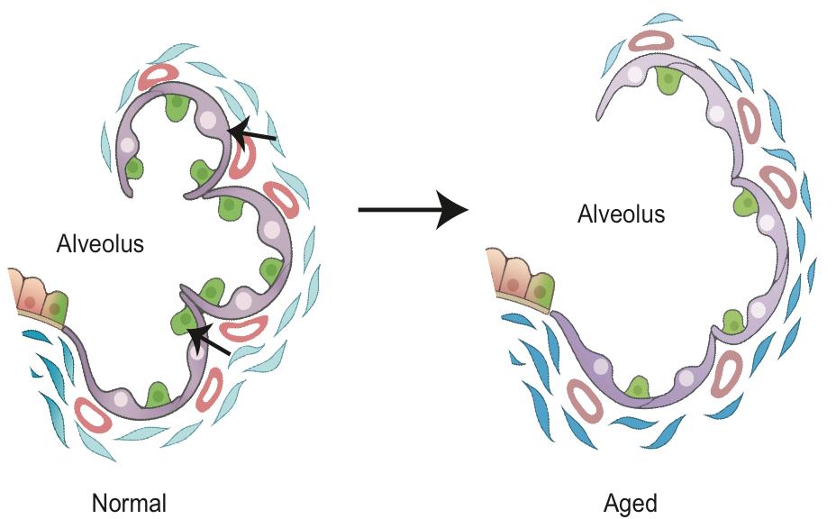 Stromal aging model
