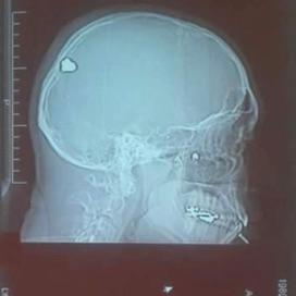 A hospital x-ray of Mario's skull, 2006