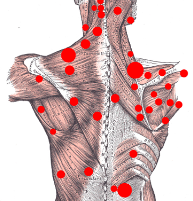 TRIGGER POINT INJECTIONS -