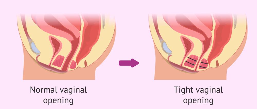 Vaginismus 57