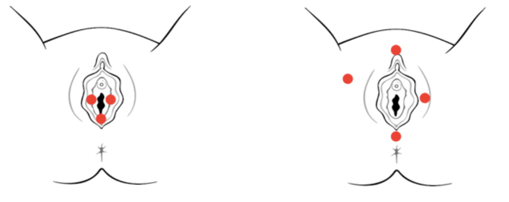 Figure 2:Provoked Vestibulodynia (PVD) (left)vs. Generalized Vulvodynia (GVD) (right)