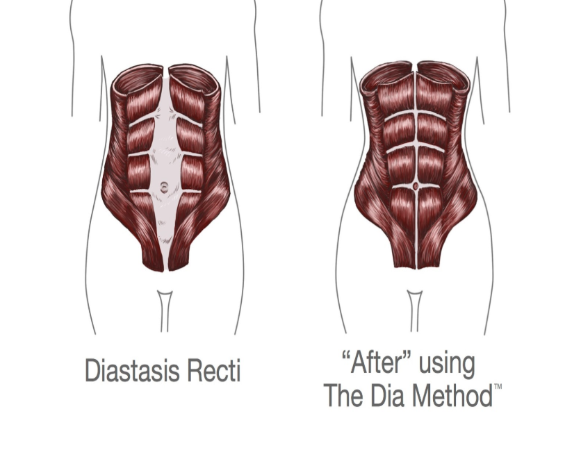 Visual demonstration of a patient with DRA, left, versus a patient without, right.