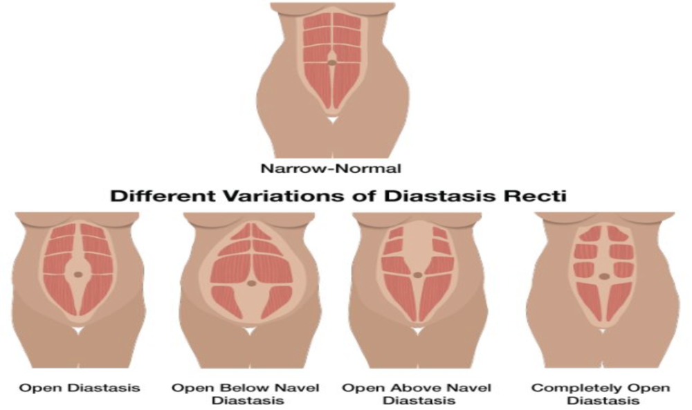 diastasis recti treatment california | pelvic floor physical therapy clinic orange county