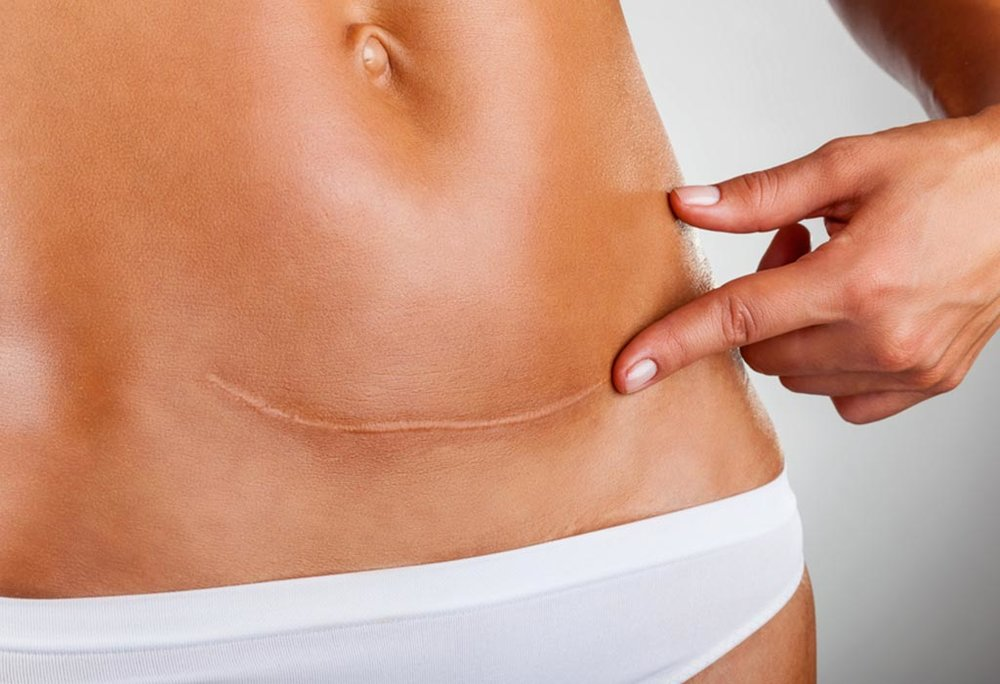 scar tissue and adhesion treatment | pelvic floor physical therapy