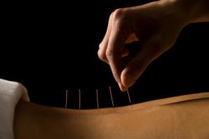 acupuncture-300x199.jpg