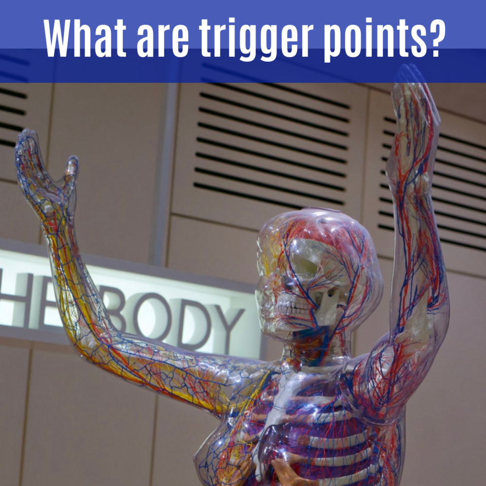 What are trigger points_.png