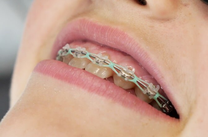 5 Reasons Your Gums Are Swollen with Braces — Teeth Talk Girl