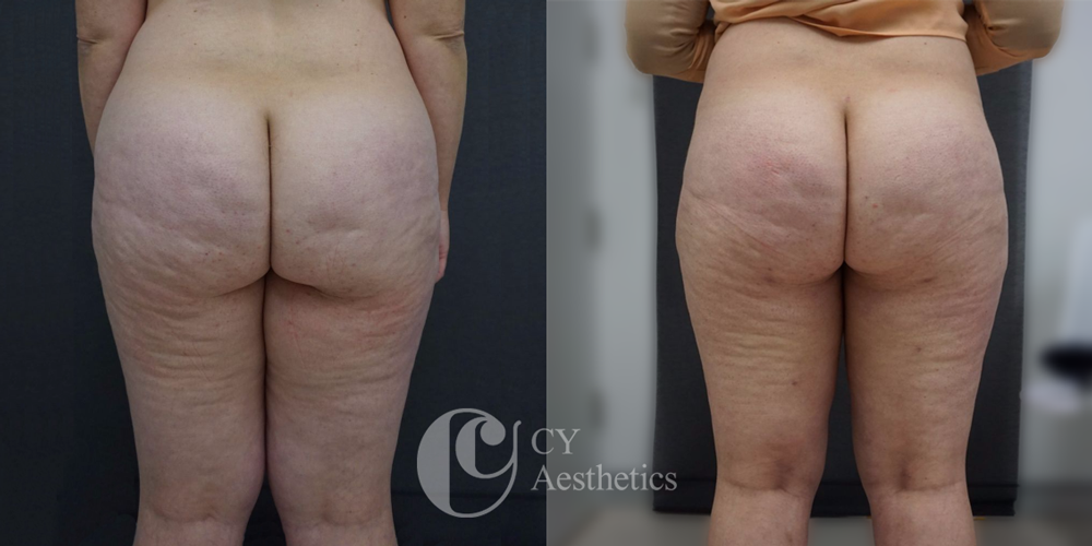 Thighs and Buttocks Liposuction